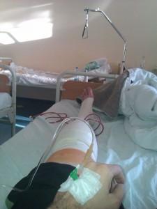 Par sati posle operacije