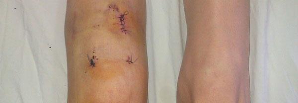 Operacija kolena (ligamentoplastika i meniskus)