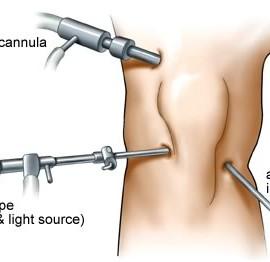 Operacija kolena (ligamenti, meniskus) – iskustva drugih.
