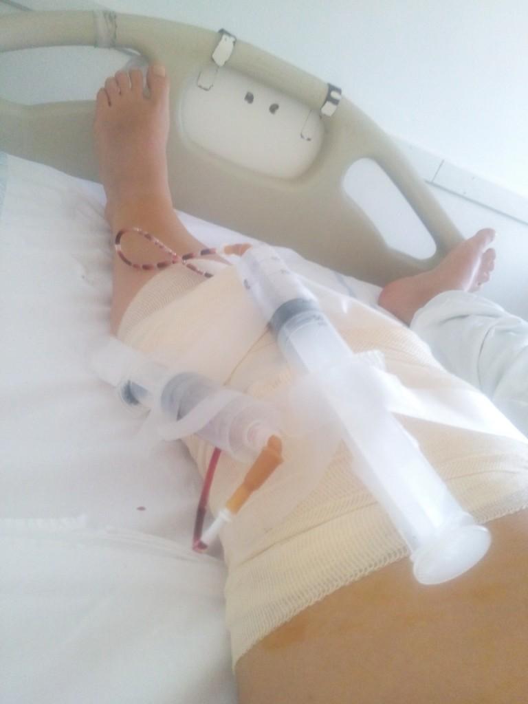 Odmah posle operacije