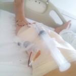 Operacija kolena – Crna Gora