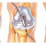 Operacija kolena (ligamentoplastika) na KBC Bežanijska kosa – Nebojšino iskustvo