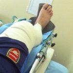 Milankov (Novi Sad) operacija kolena (LCA) – Aleksandrovo iskustvo