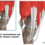 Operacija prednjih ukrštenih ligamenata – M-ino iskustvo