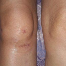 Rehabilitacija posle operacije ligamenata kolena